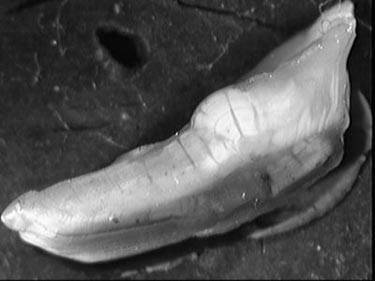 Figure 1. An example of a Pacific cod otolith prepared by the break and burn method shows the faintness of the annular pattern.