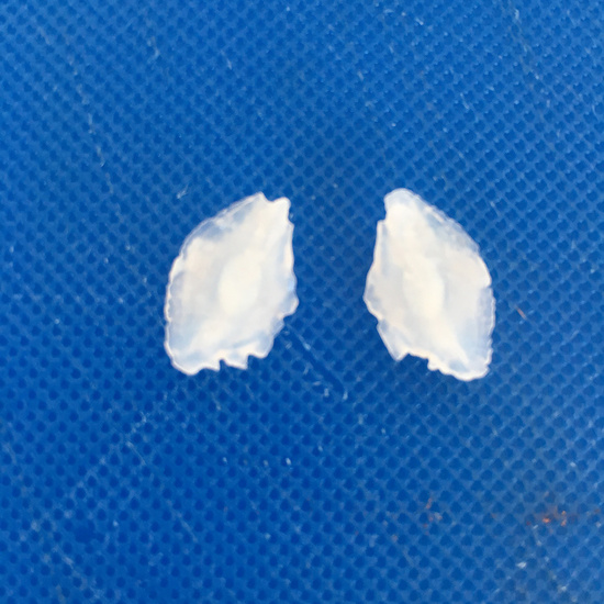 Two otoliths, calcium carbonate structures found in the head of a fish