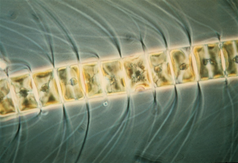 Microscopic view of a marine phytoplankton species (Chaetoceros sp.)